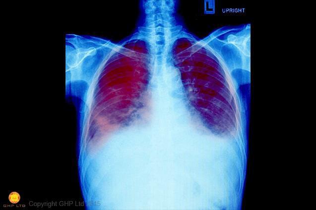 Chest-X-Ray-Interpretation-Workshop-Global-Health-Professionals-Ltd