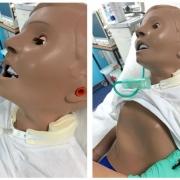 Paediatric-Tracheostomy-Care-Workshop-–-RCN-6516-Accredited